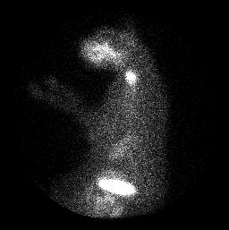 Thyroid scan of Three Jarm - lateral view with him in left lateral