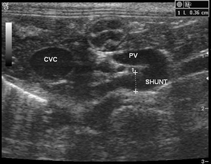 Imaging of Congenital Portosystemic Shunts