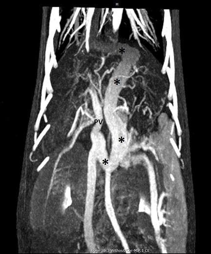 Figure 5 – Dorsal maximum intensity projection (MIP) of a CT angiogram in a dog with PSS. Cranial is at the top of the image, and the patient's right side is on the left of the image. A large tortuous shunt vessel (*) arises from the portal vein (PV), courses caudally, to the left, cranially past the diaphragm, then turning rightward to terminate on the CVC. This is consistent with a left gastric-phrenic shunt. Note the generally excellent visualization of the abdominal and pulmonary vasculature.