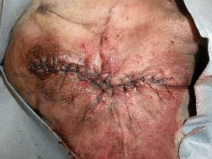 2nd intention healing in full thickness skin wound management