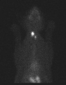 Figure 3: Computer images form during thyroid scintigraphy