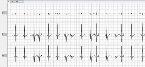 An ECG tracing in a canine patient