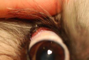 Figure 1.  Eyelid Meibomian adenoma amenable to V-plasty correction.