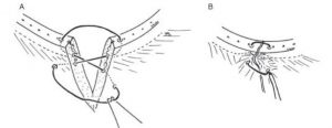 Figure 4.  Figure of 8 suture pattern for closure of the V-plasty