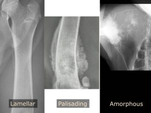 Image 5 – Ill defined or interrupted periosteal reactions. Lamellar reaction along the medial aspect of the proximal femur, characterized by linear mineralization parallel to the periosteum. Palisading (or columnar) reaction along the distal femur, characterized by linear mineralization perpendicular to the periosteum. Amorphous periosteal reaction associated with a highly aggressive proximal humerus lesion. All lesions were osteosarcoma.