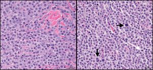 Figure 1: High magnification photomicrograph depicting a low-grade cutaneous mast cell tumor on the left and a high-grade on the right. Note the uniform appearance of mast cells in the left-hand panel, as compared to the variability apparent on the right. The vertical and horizontal black arrows depict multinucleated and karyomegalic cells, respectively, while the white arrow illustrates a mitotic figure. HE stain, 25 μm magnification bar.